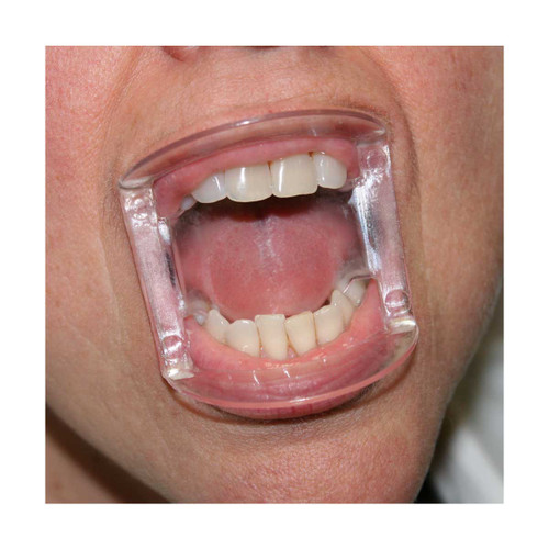 Parkell - Dry-Fields Mouth Prop Clear
