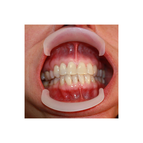 Parkell - Lip Retractor Child Parkell
