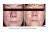 Proven Results! 6 weeks of SBR Regimen Before & After.