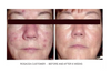 6 weeks of SBR Regimen Before & After!  100% organic & sustainably wild-crafted ingredients.  Sensitive, Blemished & Rosacea Soothing, Calming, gentle Exfoliation Mask.  Deep cleans environmental pollutants and toxins from the skin, while removing dead skin layers, allowing treatment serums to penetrate further into the skin.  Works via gentle Paypaya enzymes and soothing Black Honey.  Reveal new, healthier looking skin today!