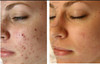 Proven Results! See how 4 weeks of usage helps in getting rid of blemishes.
