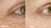 Proven Results! 60 Day Before and After Pura Veda Organics Skin Care regimen, including BioScience Peptide Complex. Utilizing the most effective Organically Derived Botanical Skin Actives available, this formula is a gentle 'topical Botox' with the Scientifically Proven best performing peptides, Argireline & Matrixyl in the most effective ratio of 10:15 concentration. Fights Facial Expression Lines, Crows feet, and Fine Lines around the lips by helping to thicken the collagen net that supports your skin. Imparts a wonderful glow as a result of Free Radical Scavenging Ayurvedic actives that help skin cells turn over faster and act more like young, healthy skin.