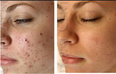 Facial skin blemish