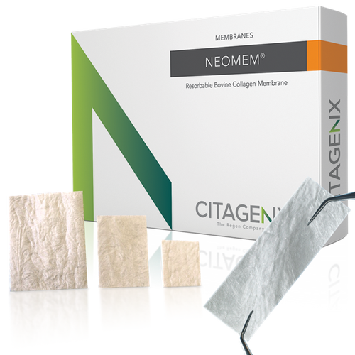 Citagenix Neomem membrane is a Type 1 bovine collagen matrix indicated for use in guided tissue procedures to enhance wound healing.