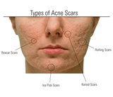 From Ice pick scars to Hyperpigmentation: Treat Acne Scars Naturally!