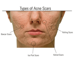 From Ice Pick Scars To Hyperpigmentation Treat Acne Scars Naturally Odylique North America