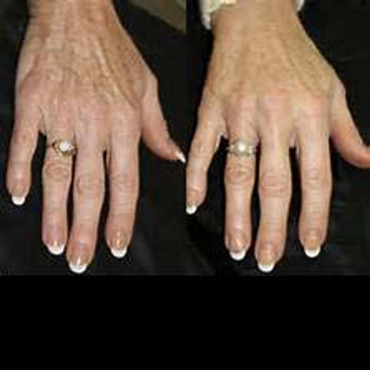 IPL Skin Rejuvenation - Hands