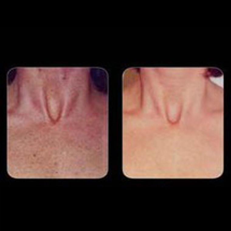 IPL Skin Rejuvenation - Chest