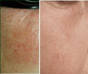 before-after-ipl-treatment.jpg