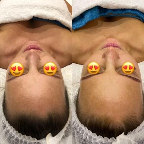 dermafrac-skin-needling-treatment-ba10a.jpg