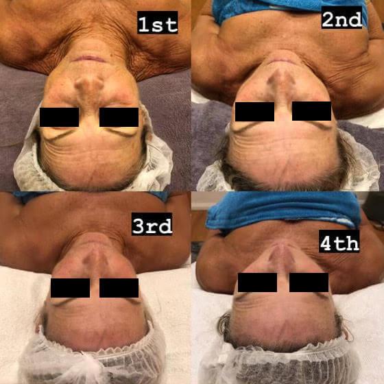 dermafrac-skin-needling-treatment-ba2a.jpg