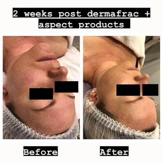 dermafrac-skin-needling-treatment-ba3.jpg