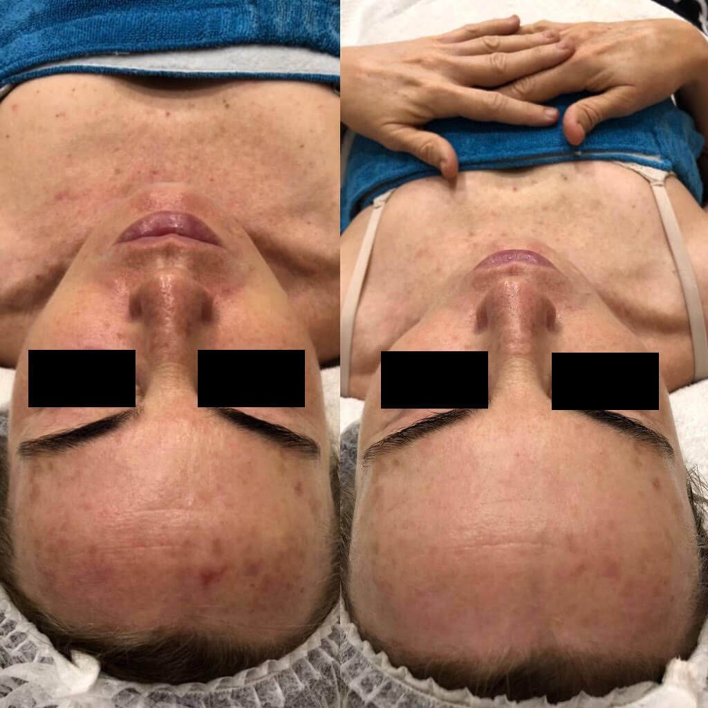 dermafrac-skin-needling-treatment-ba4a.jpg