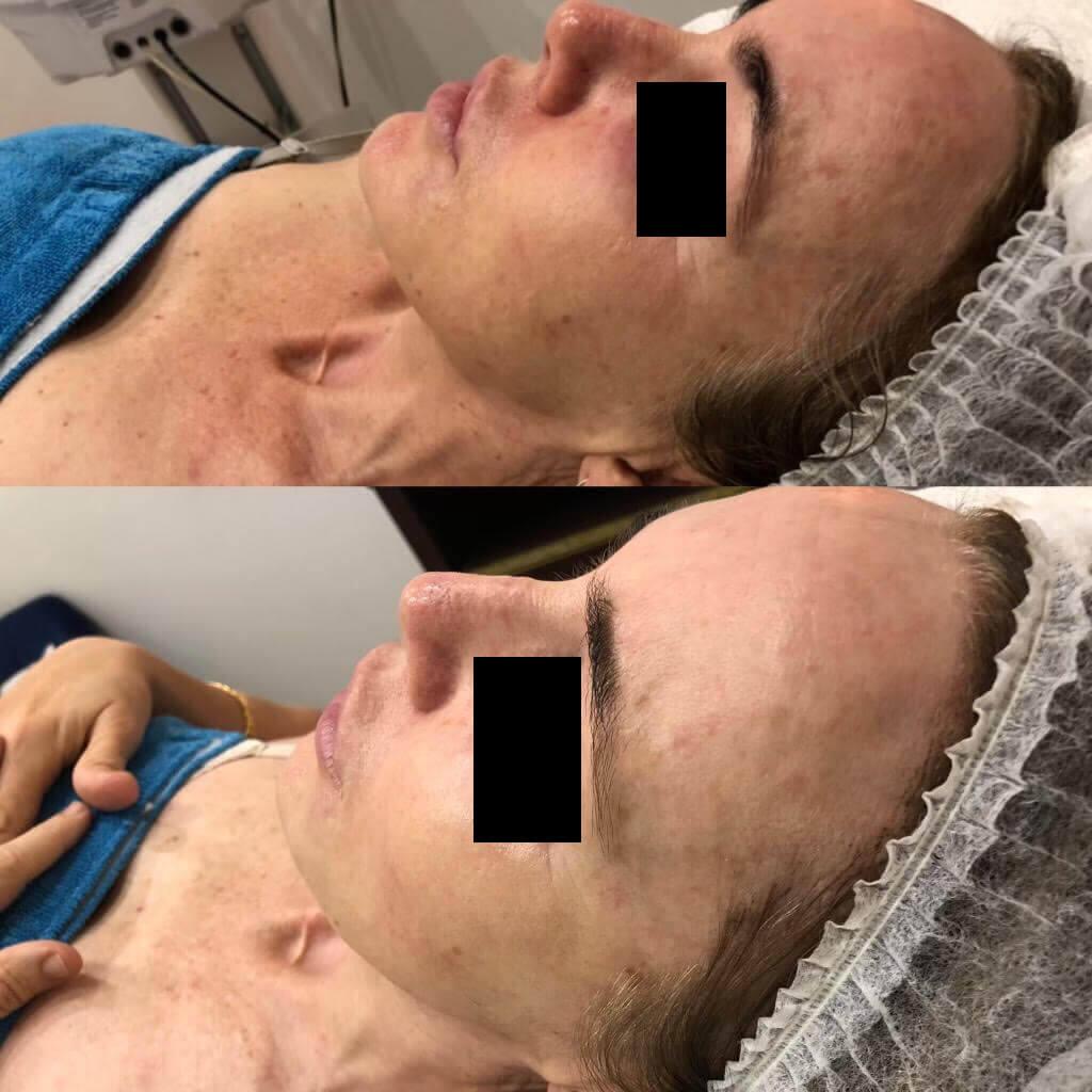 dermafrac-skin-needling-treatment-ba5.jpg