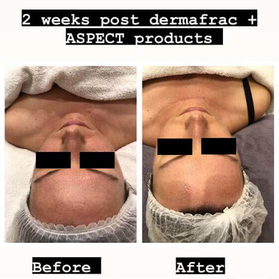 dermafrac-skin-needling-treatment-ba7a.jpg