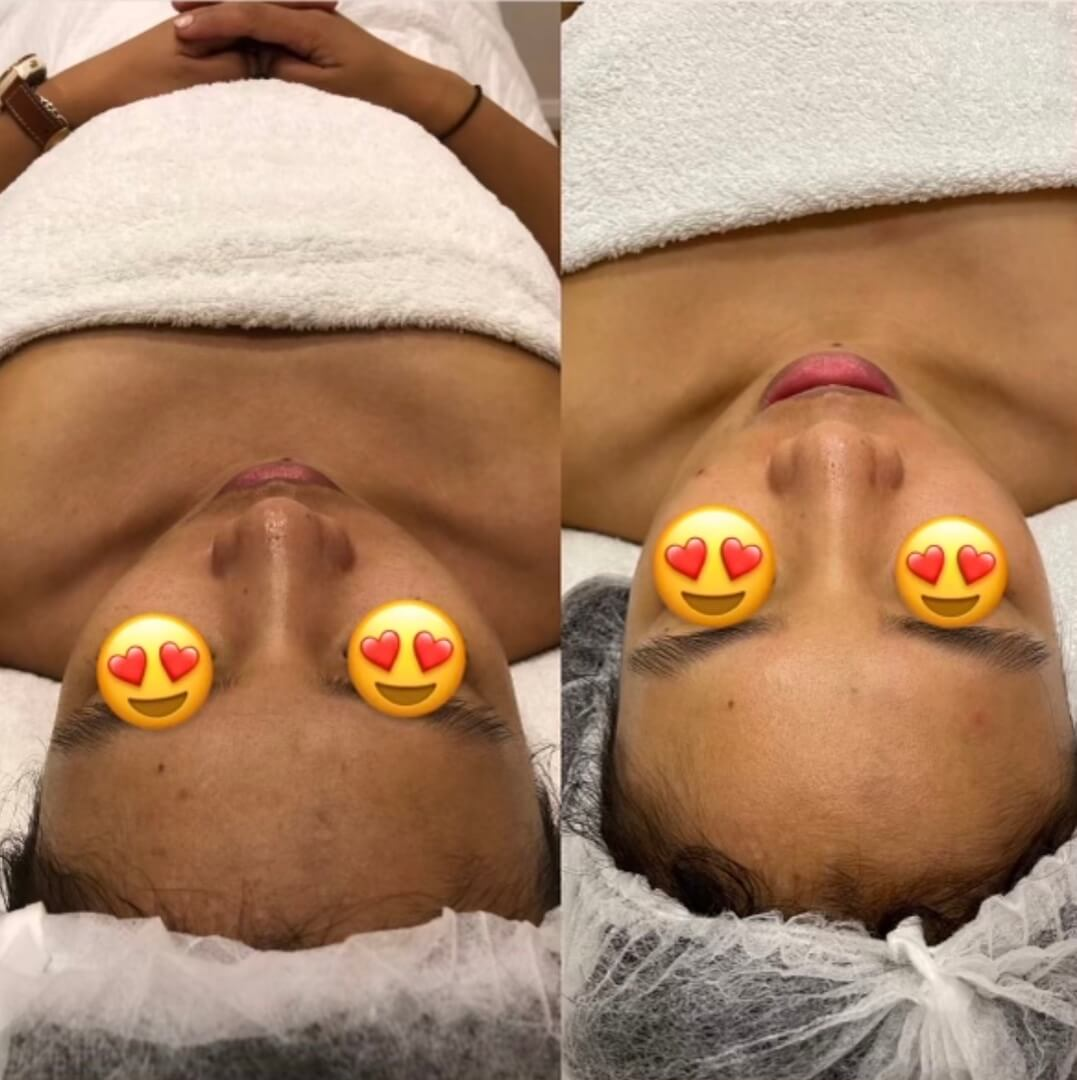 dermafrac-skin-needling-treatment-ba8a.jpg