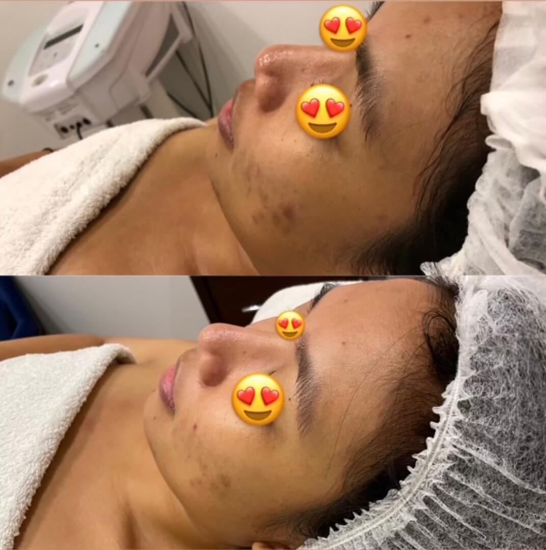 dermafrac-skin-needling-treatment-ba9a.jpg