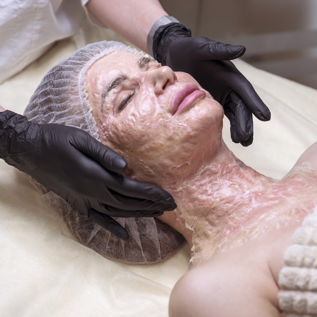 enzymology-dermafix-enzyme-treatments.jpg