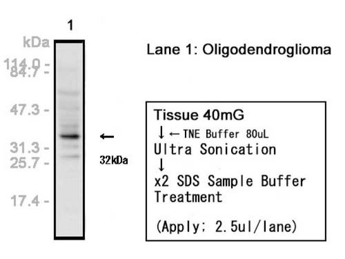 Olig2 Anti-Human Rabbit IgG Affinity Purify