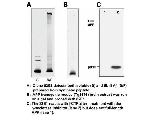 Amyloid Beta ( N ) ( 82E1 ) Aβ Anti-Human Mouse IgG MoAb