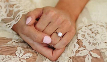 How to Avoid Getting Wedding Ring Rash