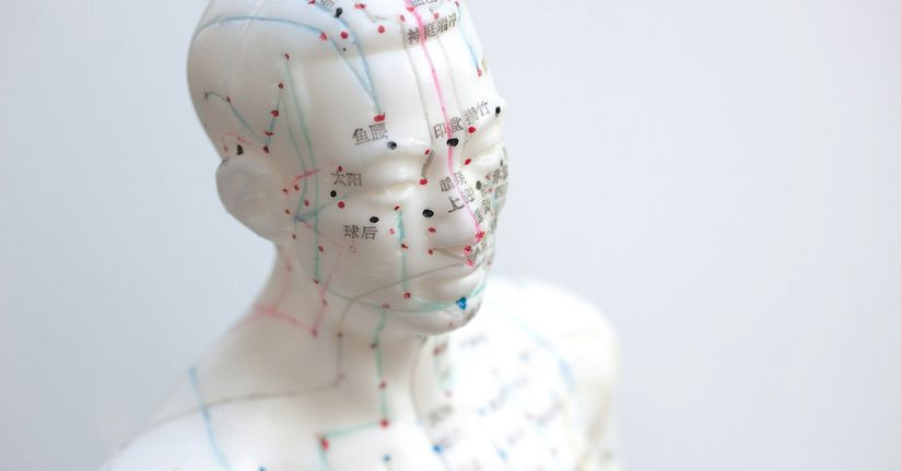 Acupuncture for Migraines Has Been Getting a Lot of Attention Lately