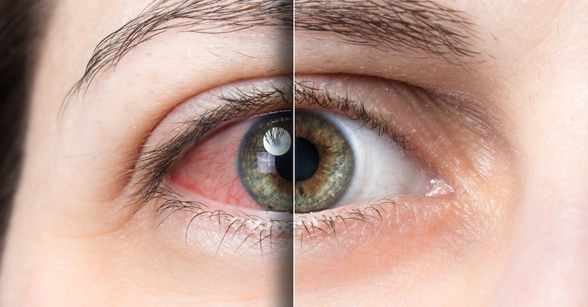 Dry Eye: A Leading Cause of Light Sensitivity