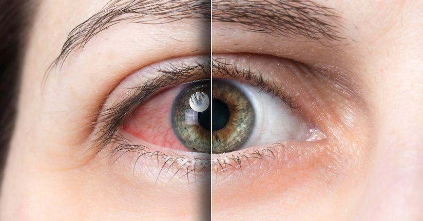 Dry Eye A Leading Cause Of Light Sensitivity Theraspecs