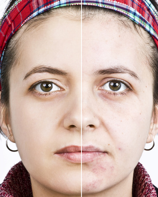 woman-before-after-mineral-makeup-reducing-redness.jpg