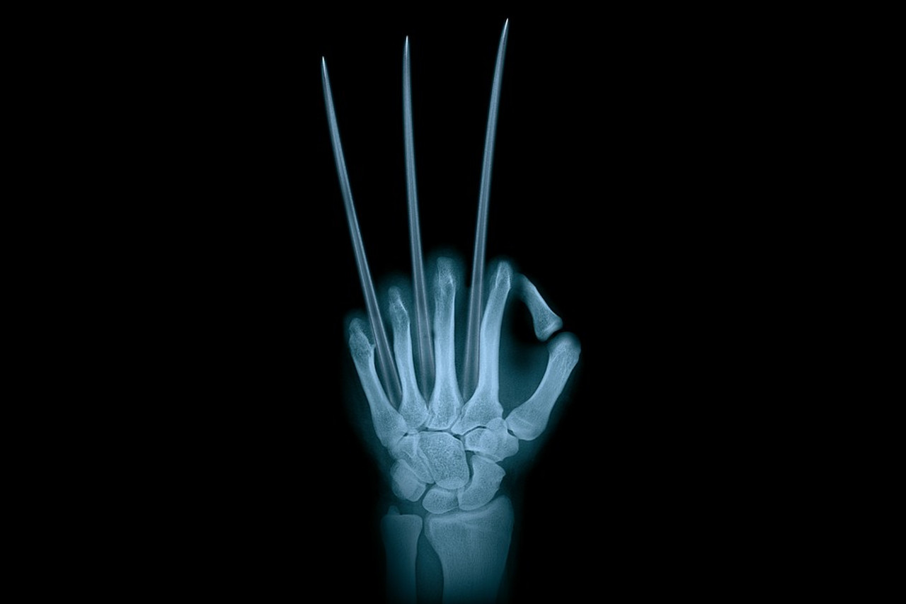 Avoid Failure in a Fake X-Ray Prank