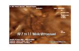 3D Sonogram 7 to 11 Weeks