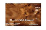 3D Sonogram 11 to 12 Weeks