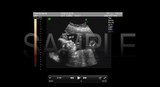 BRAND NEW FAKE SONOGRAM DVD VIDEOS! ON SALE FOR A LIMITED TIME!!!