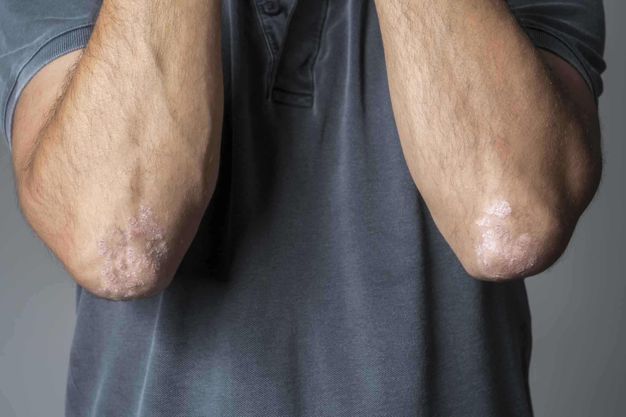 psoriasis-on-elbows.jpg