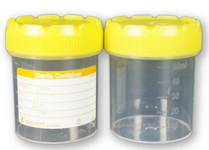 Specimen Bottle Labelled 70ml, Sterile, Yellow Cap, Each