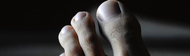 Le lien étonnant entre les ongles incarnés et l'hyperhidrose