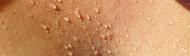 Évaluation de la sueur: Comprendre les différents types d'hyperhidrose