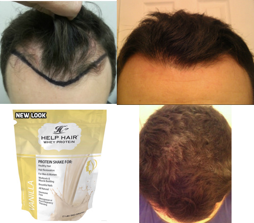 How To Make Hair Thicker, Hair Loss Remedies