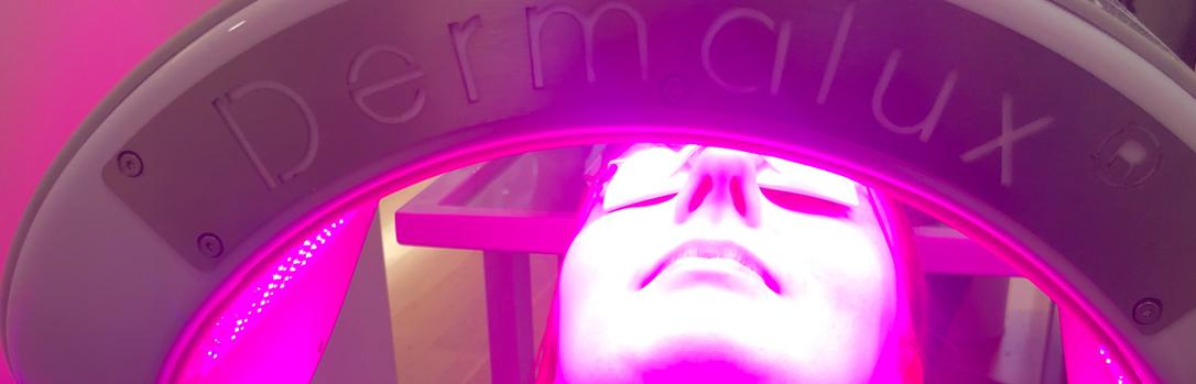 Dermalux Treatment
