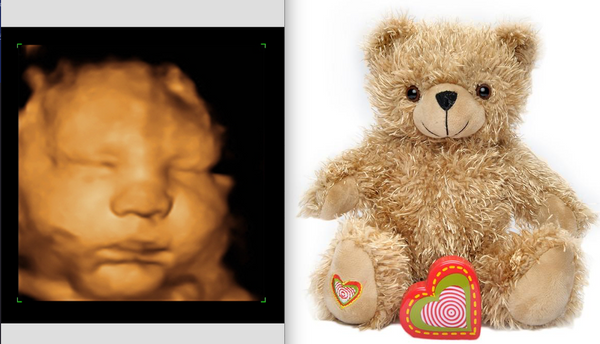 3D/4D Ultrasound DELUXE Sonogram Package (50% Off promo)