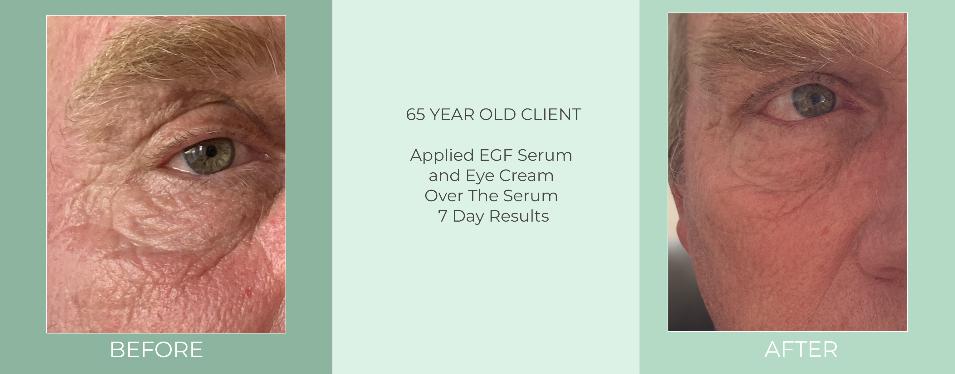 65-yrs.-applied-egf-serum-and-eye-cream-over-the-serum-7-day-results-before-and-after.jpg