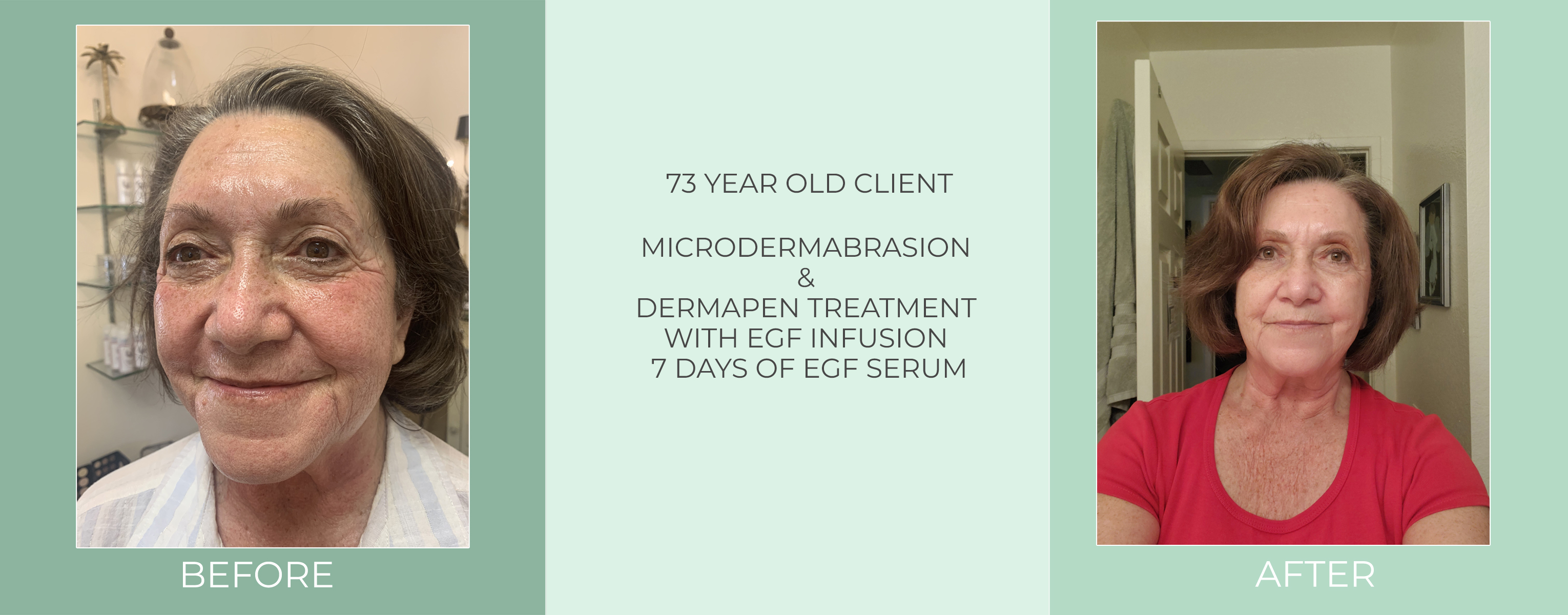 73-year-old-client-microdermabrasion-dermapen-treatment-with-egf-infusion-7-days-of-egf-serum-before-and-after.jpg