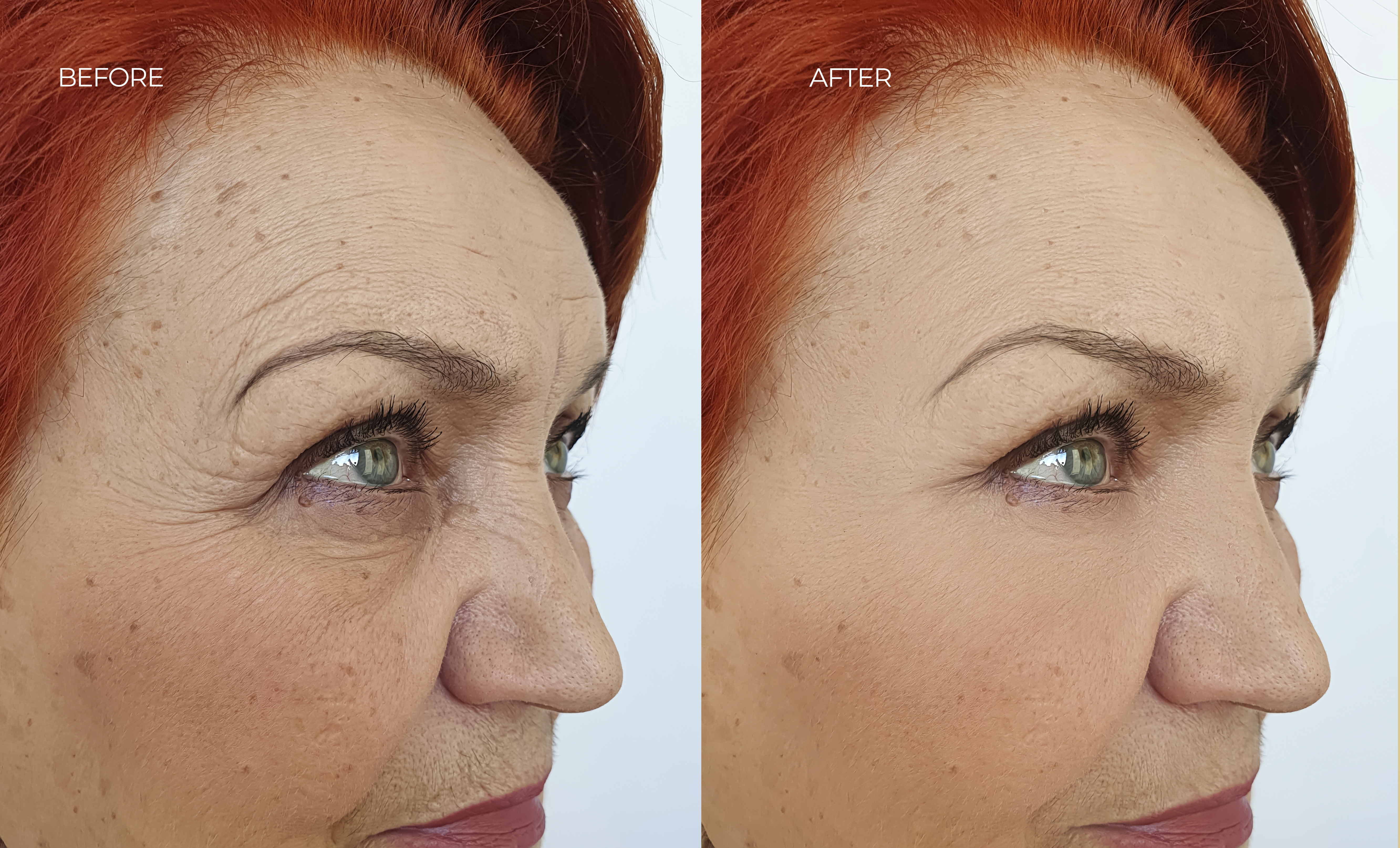 before-after-1.jpg