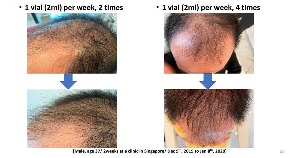 hair-restore-1.jpg
