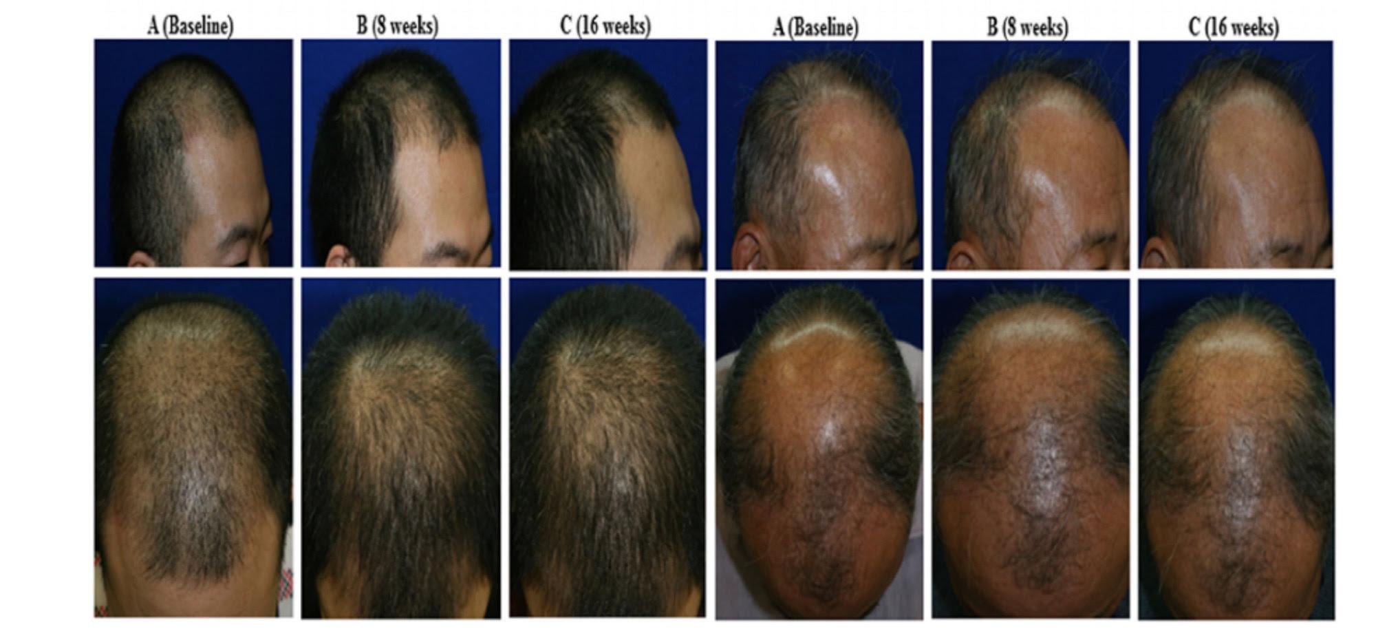 hair-restore-2.jpg