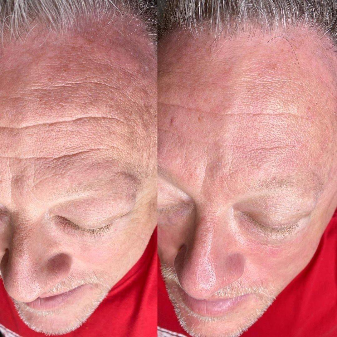 hydra-skin-3.jpg