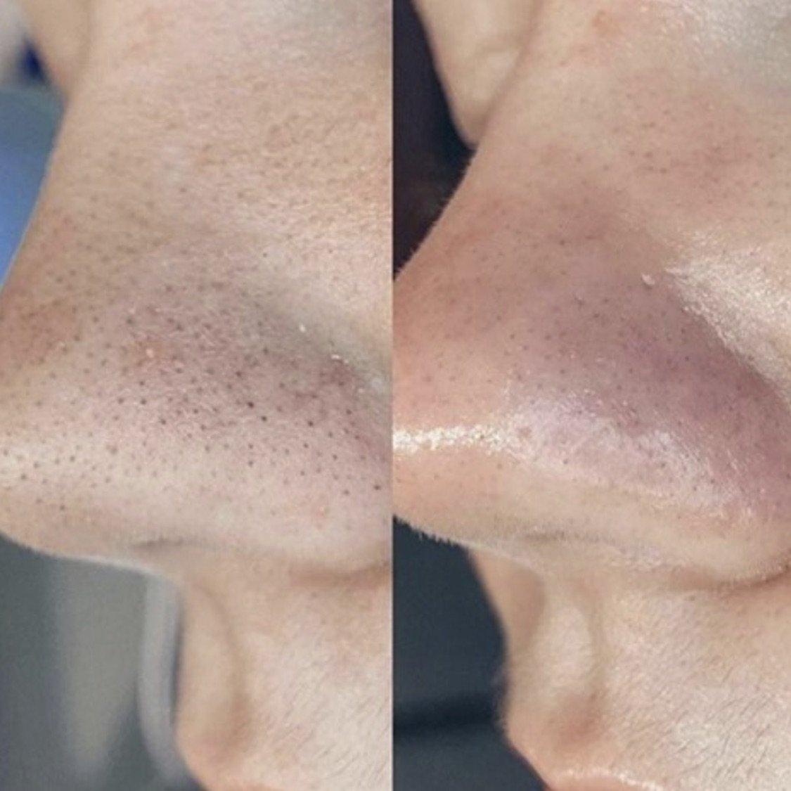 hydra-skin-5.jpg