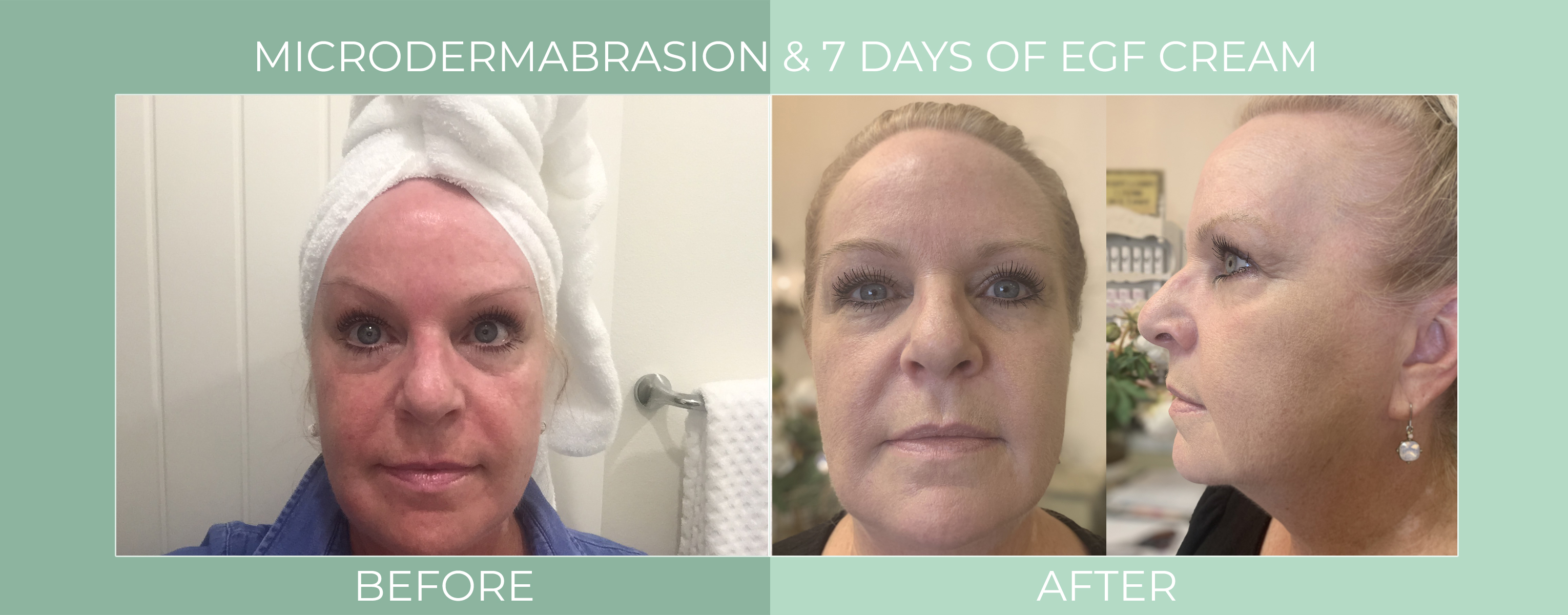 microdermabrasion-7-days-of-egf-cream-before-and-after.jpg