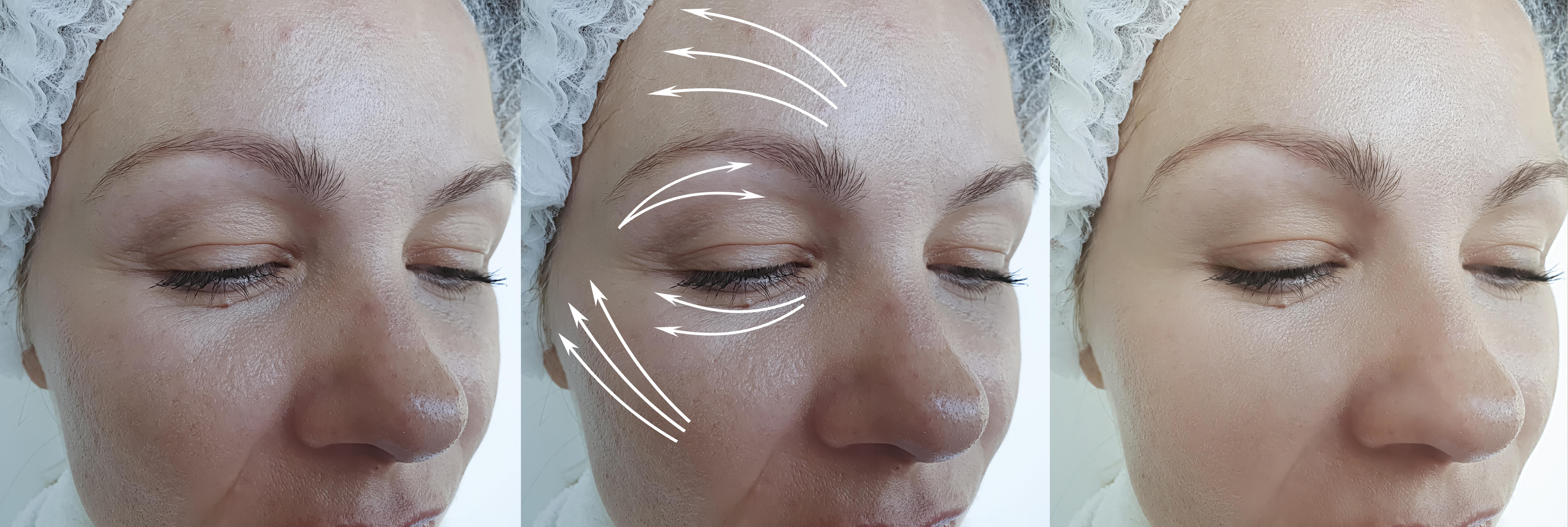 neuropeptide-growth-factor-wrinkle-serum.jpg