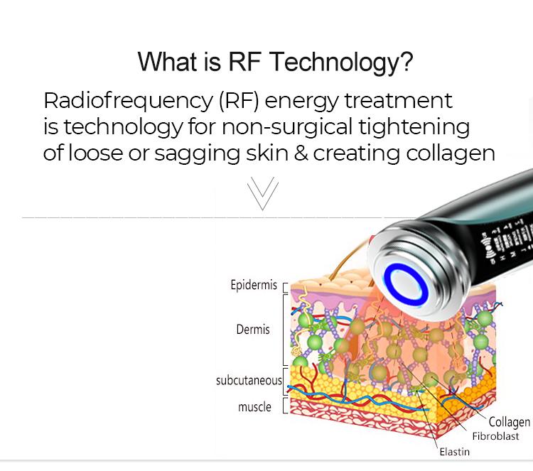 rf-tech.jpg